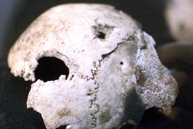 The bone fragments held by the Russians were not from Hitler