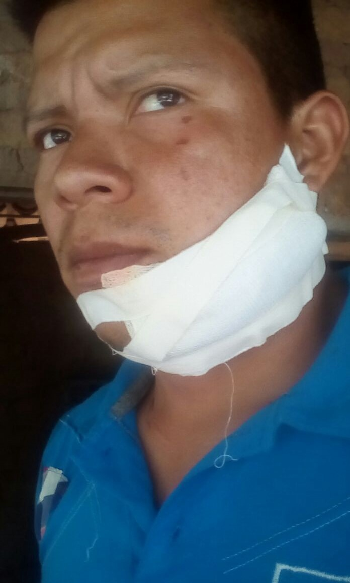 Misael Sanchez, a few weeks after a hooded man chopped his face with a machete following a union meeting near Choluteca, Honduras.