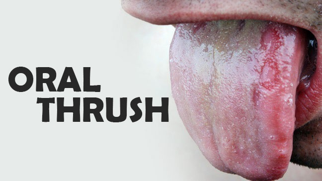 does miley cyrus have oral thrush? or is it something more major?, Skeleton