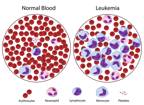 understanding the dangers of leukemia Everything you need to know about blast cells and myeloblasts found circulating out in the bloodstream can be an important indicator of certain diseases such as acute myelogenous leukemia and myelodysplastic syndromes understanding chronic myeloid leukemia: overview, symptoms, prognosis.