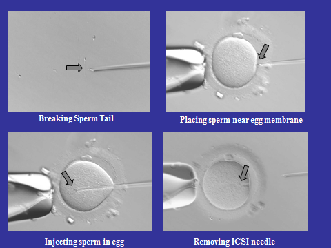What is Assisted Reproductive Technology | https://medandart