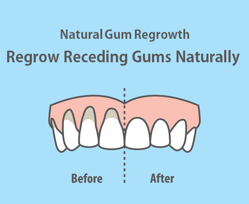 Gum regrowth products