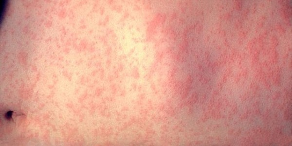 640px-Morbillivirus_measles_infection