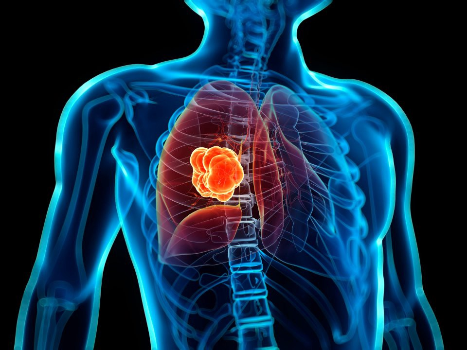 Lung Cancer : Bridging the gap between medical imaging and data science