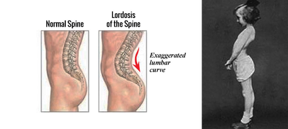 Image result for lordosis