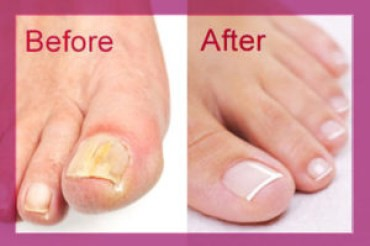 The Natural Cure for Toe Nail Fungus – Buy Zeta Clear – Medium